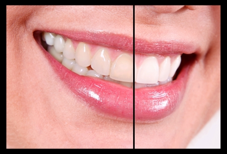 Contrast teeth whitening without bleaching   photo