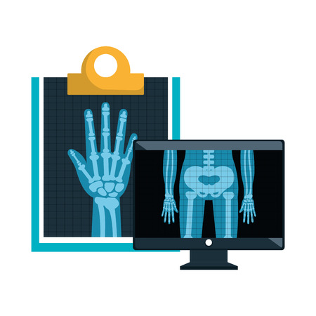 radiology: monitor computer with X ray digital medical healthcare radiology. vector illustration Illustration