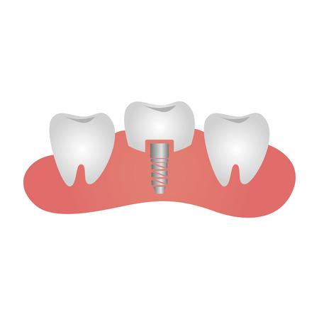 A dental healthcare treatment icon vector illustration design