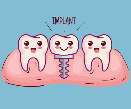 Dientes e implantes sobre fondo azul ilustración vectorial Foto de archivo - 81006522