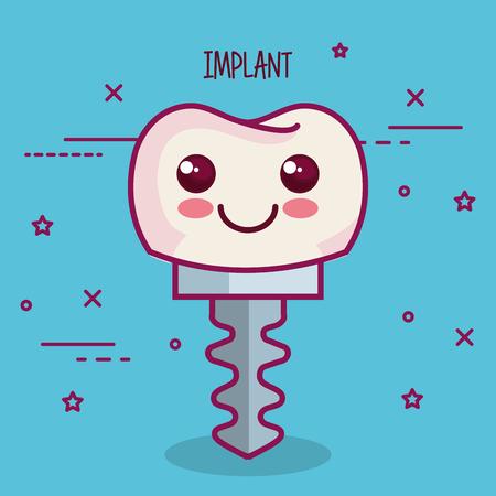 dental implant over blue background vector illustration Çizim