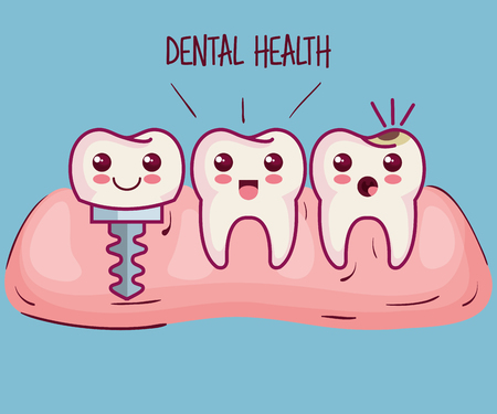 歯とインプラント青い背景上のベクトル イラスト