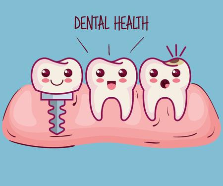 Tanden en tandheelkundige implantaat over blauwe achtergrond vector illustratie Stock Illustratie