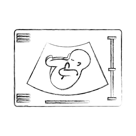 Ultrasound monitor isolated icon vector illustration design Ilustracja