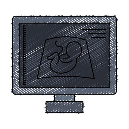 Monitor de ultrasonido icono aislado diseño de ilustración vectorial Foto de archivo - 82029444