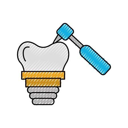 tandheelkundige implantaat met boor vector illustratie ontwerp