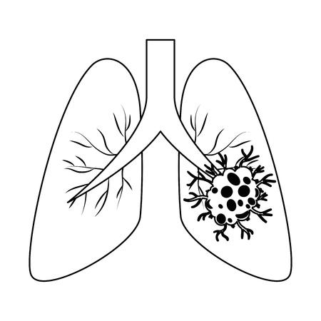 Longkanker geïsoleerde pictogram. Vector illustratie ontwerp.