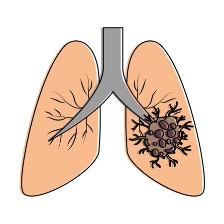 Ontwerp van de het pictogram vectorillustratie van longkanker het geïsoleerde Stock Illustratie