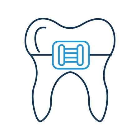 ブラケットベクトルイラストデザインの人間の歯