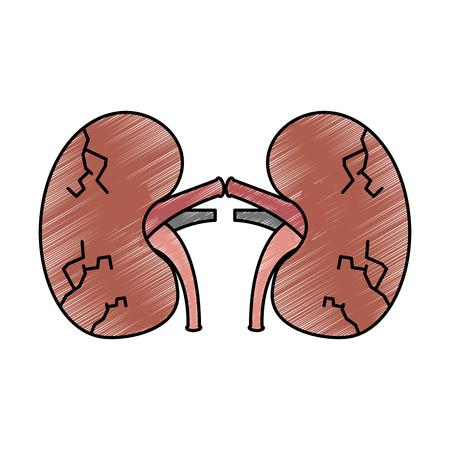 Nieren menschliche ungesunde Krankheit medizinische anatomische beschädigte Zeichnung Zeichnung Vektor-Illustration Design Standard-Bild - 95145021