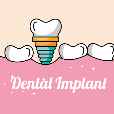dental implant tooth and gum inside mouth vector illustration