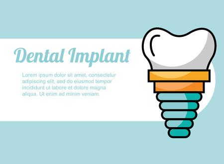 dental implant treatment care image vector illustration Illustration