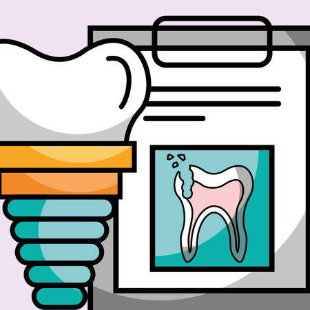 dental implant clipboard broken tooth report vector illustration