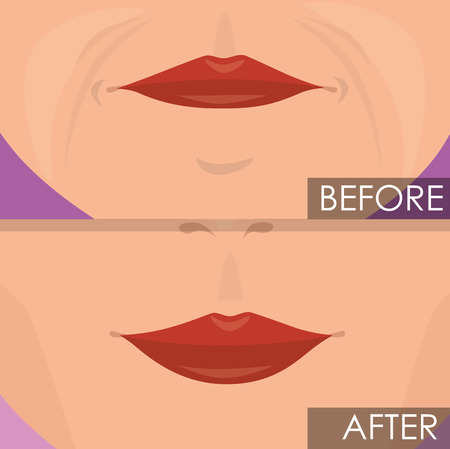 woman lips before and after treatment vector illustration design