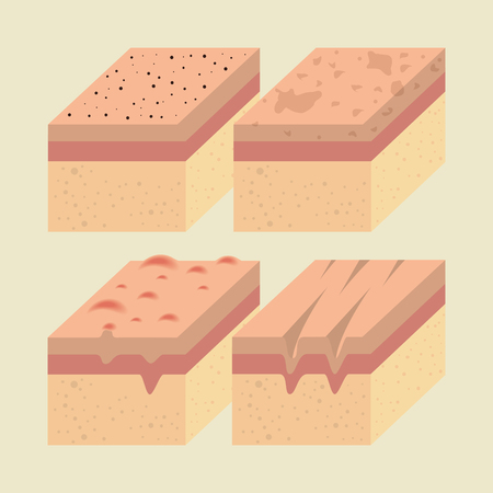 layers of skin types vector illustration design