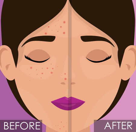 woman before and after skin treatment vector illustration design Stock Vector - 109753727