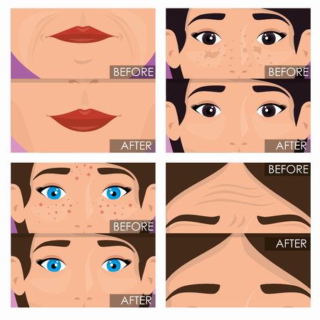woman before and after skin treatment vector illustration design Stock Vector - 109753823