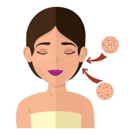 woman in towel with skin treatment vector illustration design