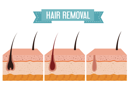 layers skin structure with hair removal icons vector illustration design Ilustração