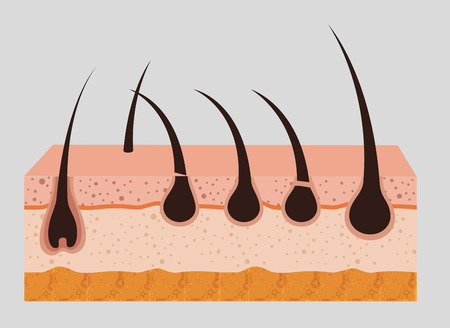 layers skin structure with hair removal icons vector illustration design Иллюстрация