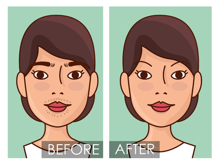 woman faces hair removal before and after vector illustration design Ilustração