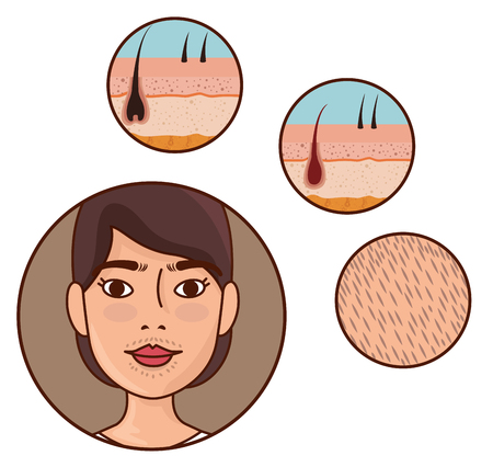 woman face with hair removal icons vector illustration design Archivio Fotografico - 112447895