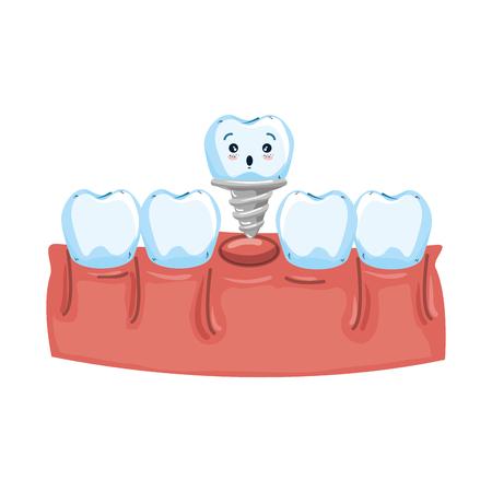 human teeth with dental implant kawaii vector illustration design Illusztráció