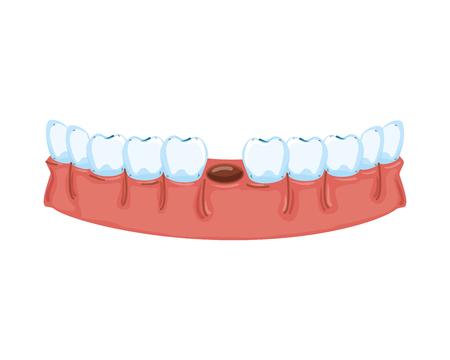 human teeth without one tooth vector illustration design Illusztráció