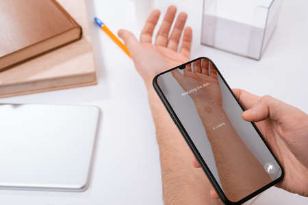 Man using a phone app to identify a red spot on his hand