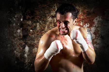 street shots: Aggressive boxer with blood on the face