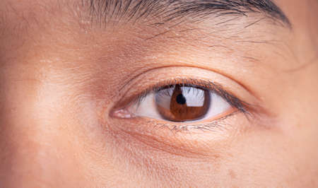 Close Up of Asian woman blinking Eyes and little freckles on her beautiful face.