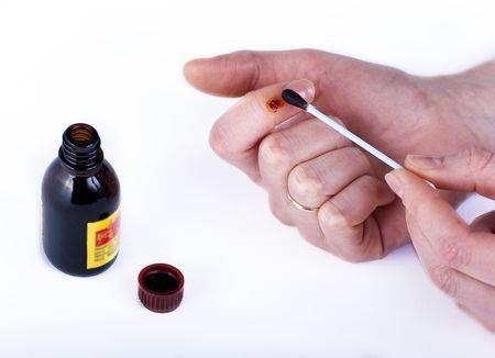 Disinfection of wounds on a finger with iodine Stock Photo