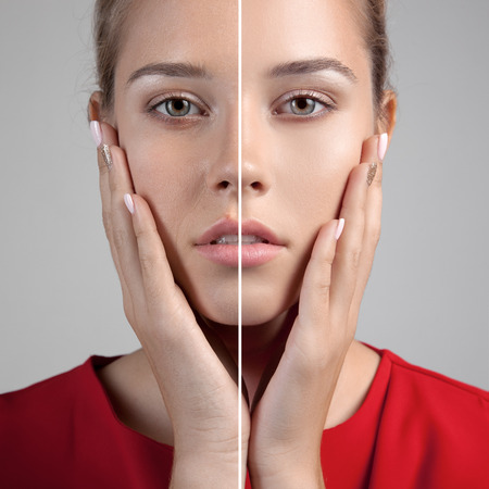 Woman with spotty skin with deep pores and blackhead and healed soft skin Stockfoto