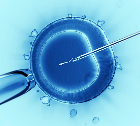 human sperm: Sperm injection  Stock Photo
