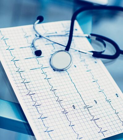 Stethoskop und Elektrokardiogramm auf dem Tisch vom Therapeuten