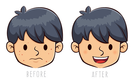 before: Vector stock of a boy face with acne problem, before and after Illustration
