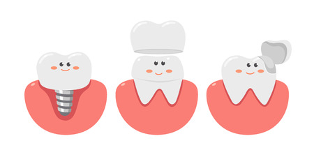 Healthy teeth with a dental implant, healthcare.