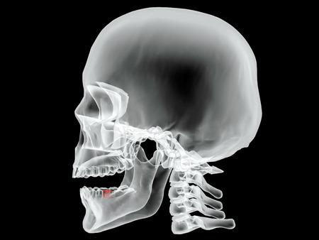 corpo umano: Blueprint con i raggi X immagine Vector black letto 2