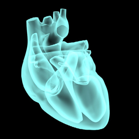 heart valves: Electrical pathways of the heart X-Rays mesh