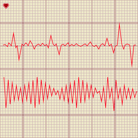 cardiogram: Vector Set of various cardiogram design elements. Cardiogram lines of healthy heart and heart stop