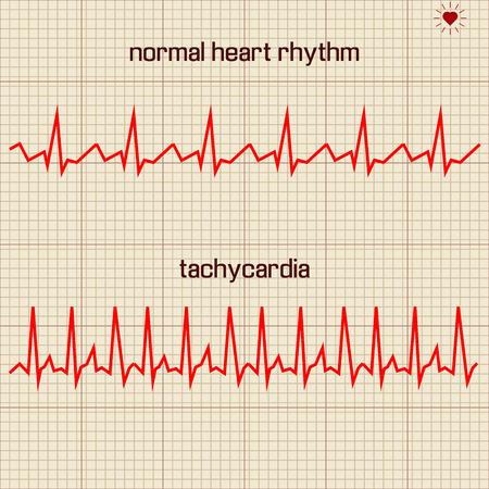 heart beats: Vector illustration set Heart beats cardiogram 1 Illustration