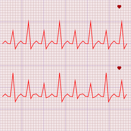 heart beats: Vector illustration set Heart beats cardiogram 3 Illustration