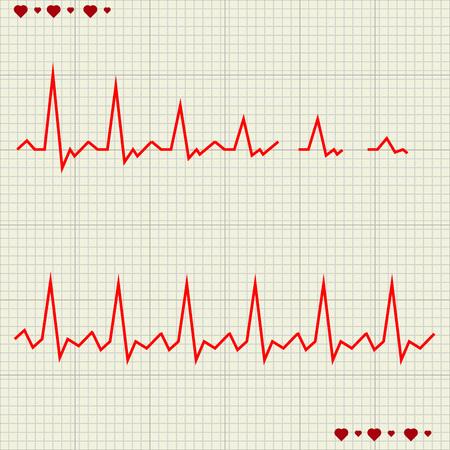 cardiograph: Vector illustration set Heart beats cardiogram 4