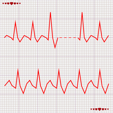 cardiogram: Vector illustration set Heart beats cardiogram 5