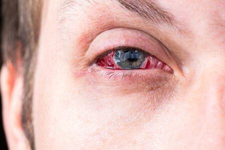 colpo di primo piano dell'occhio infiammato pesante postoperatorio con messa a fuoco selettiva