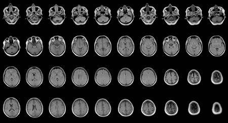 set of serial MRI scans of sixty years old caucasian female head