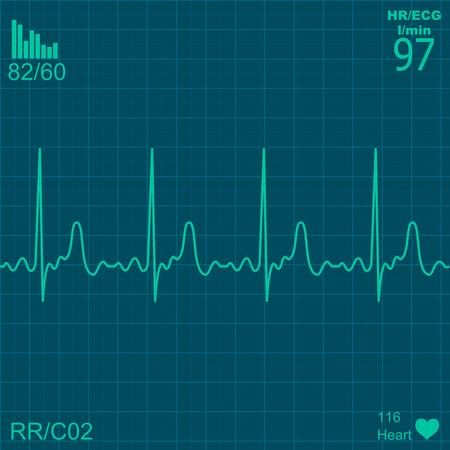 인간의 심장의 전기 활동의 그림