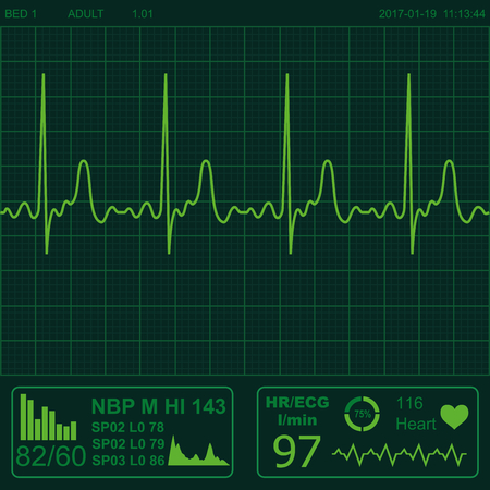 heart monitor: Illustration of electrical activity of the human heart Illustration