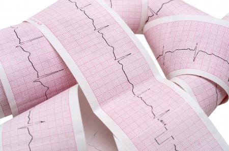 cardioid: Gr�fico de ECG de papel con el pulso de latido cardiaco aislado en blanco