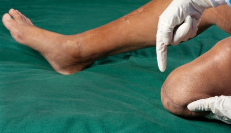 A healthcare professional examines the stump after a below knee amputation